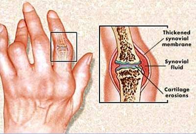 Reumatoid Artritisz - krónikus sokízületi gyulladás, a lappangó kór