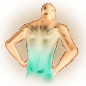  Sacroileitis - a csípő-keresztcsonti ízület gyulladása