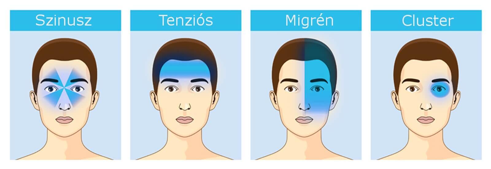 fejfájás típusok